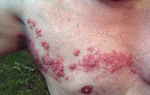 dermatoom gordelroos